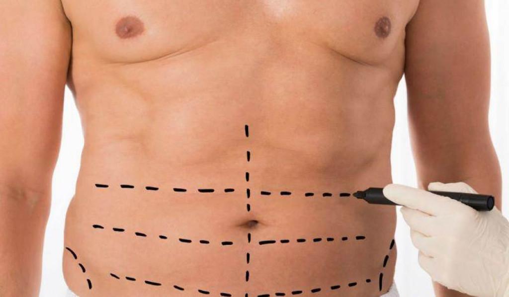 عملية شفط الدهون وأهميتها